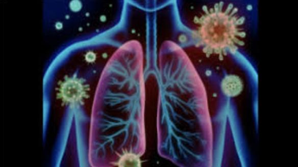 Covid-19 and Immunity A cytokine storm